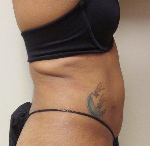 Manhattan liposuction after 11